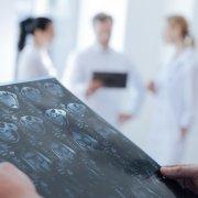 2020新发现,治疗侵袭性脑癌的潜在疗法