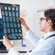 脊髓肿瘤手术成功率
