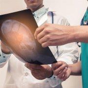【垂体瘤】什么是垂体瘤