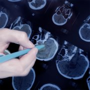 弥漫性浸润与局灶性脑干胶质瘤