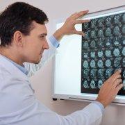中枢神经系统肿瘤硼中子俘获疗法BNCT治疗研究