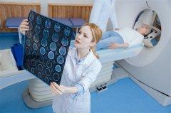 研究男性和女性胶质母细胞瘤的差异