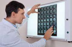 双丘脑胶质瘤可能与单侧高级别胶质瘤在分子上