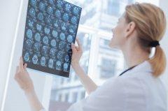 有或没有荧光素钠指导的高级神经胶质瘤切除术