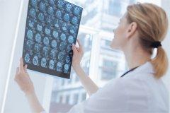 【胶质瘤病因】胶质瘤是怎样形成的?