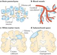 神经胶质瘤为什么具备侵蚀性?胶质瘤会转移吗