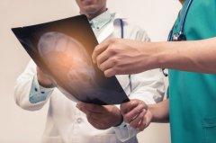 脑胶质瘤年龄的分布,哪类人容易得胶质瘤