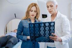 少突胶质瘤的影像表现