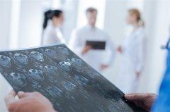 【胶质瘤病因】脑胶质瘤是怎么引起的?