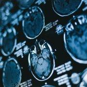 囊性胶质瘤的症状有哪些?