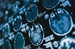 丘脑胶质瘤的放射学特征