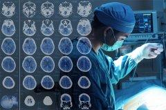 肿瘤脑转移的小胶质细胞。