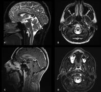 鼻内入路微创手术完全切除颅颈交界处脊索瘤。