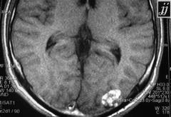 偶发性脑海绵状血管瘤需要手术吗?