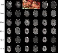 弥漫着浸润性脑胶质瘤的手术治疗治疗和认知功能危害